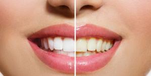 Δόντια: Τι να προσέχετε το καλοκαίρι